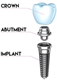 illustration of implant