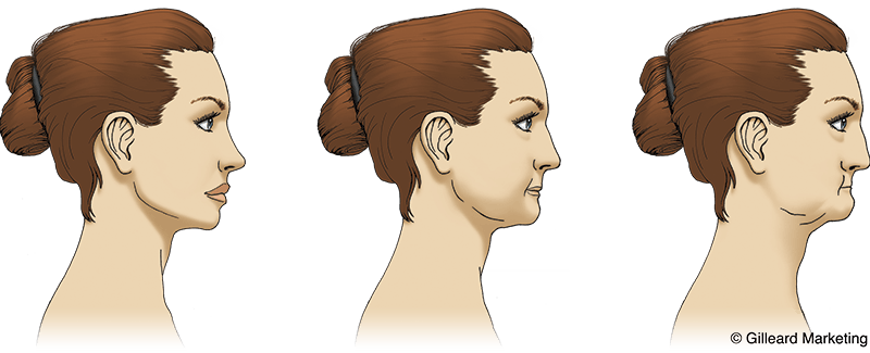 illustration of bone loss in the face